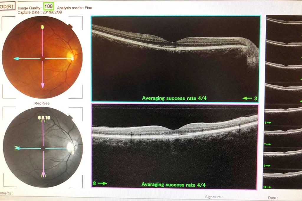 【図1 網膜断層検査における正常黄斑部】